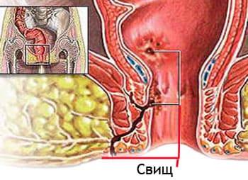 Хронический парапроктит свищевая форма