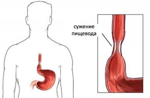 Стеноз пищевода симптомы у взрослых