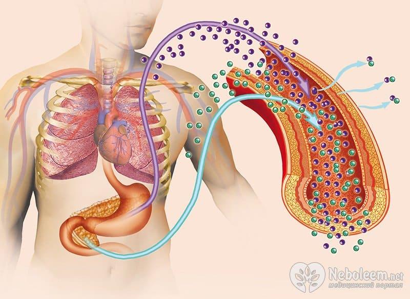 Синдром Золлингера - Эллисона - симптомы болезни, профилактика и лечение Синдрома Золлингера