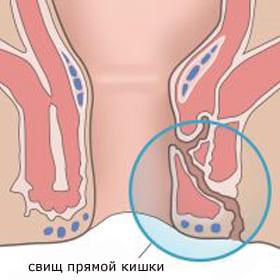 Симптомы и лечение свищей прямой кишки