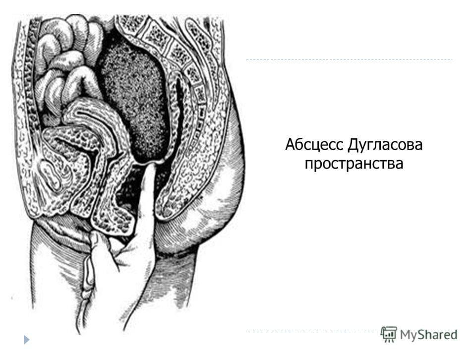 ДУГЛАСОВО ПРОСТРАНСТВО — Большая Медицинская Энциклопедия