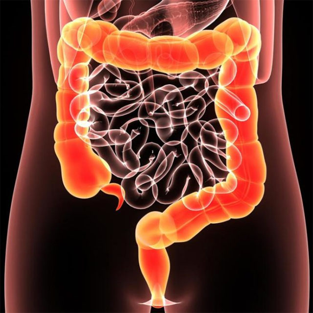 Неспецифический язвенный колит (НЯК) - симптомы и лечение
