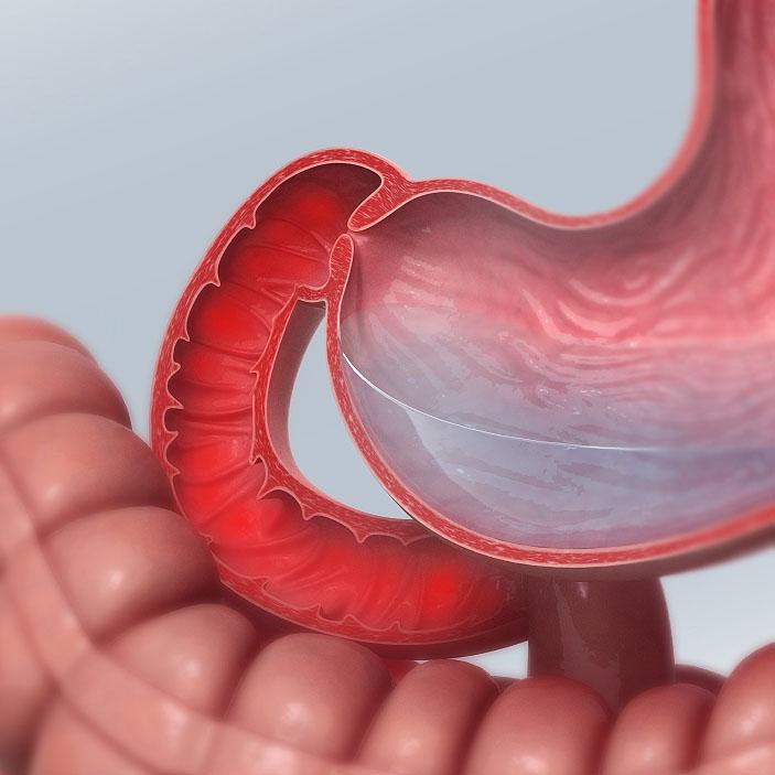 Дуоденит у взрослых: признаки, симптомы, лечение. Что это за болезнь и как лечить дуоденит